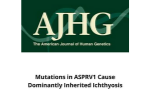 Mutations in ASPRV1 Cause Dominantly Inherited Ichthyosis